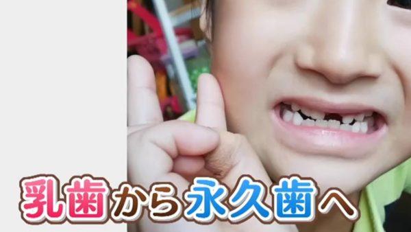あと た 乳歯 抜け